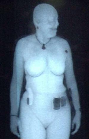 Full Body X-Rays. Photo: AP